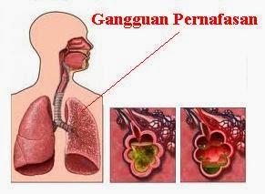 Gangguan penyakit pada alat pernapasan manusia