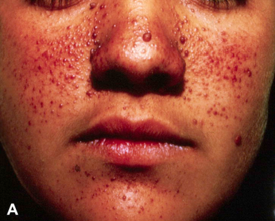 Cowden 综合征的毛外根鞘瘤,面颊和鼻周 2-3 mm 大小的多发性丘疹