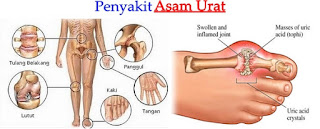 asam urat obat alami, obat untuk asam urat, obat herbal asam urat, obat asam urat tradisional, obat kolesterol
