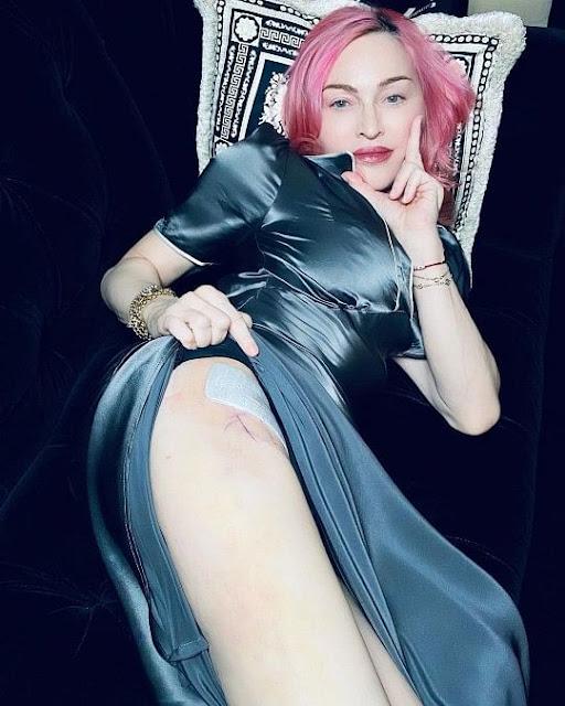 Madonna membatalkan 3 konser karena masalah kesehatan