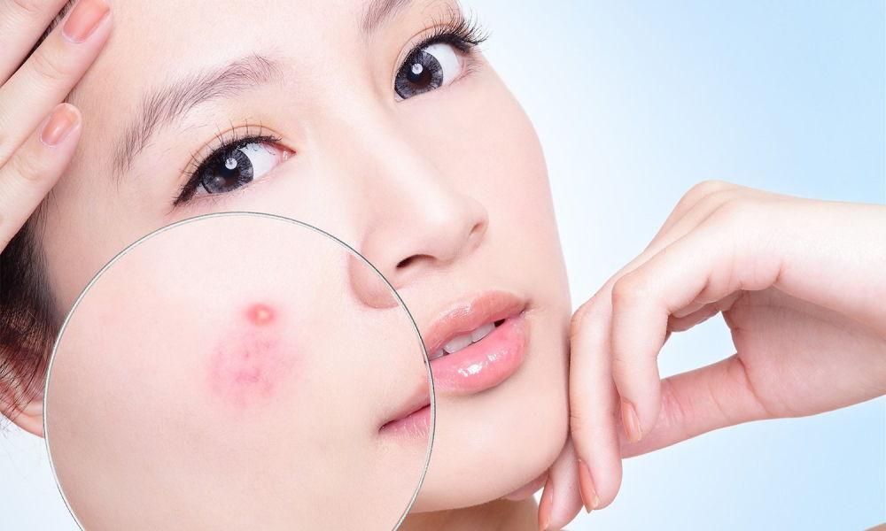 Đắp mặt nạ trị mụn hiệu quả nhanh chống tại nhà hiệu quả