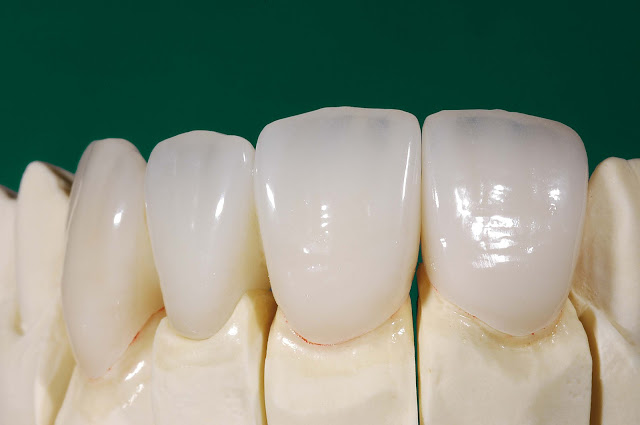 IPS emax dental crown and bridge
