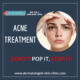 Acne scar treatment Kerala