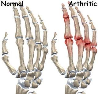 remedios naturales para artritis