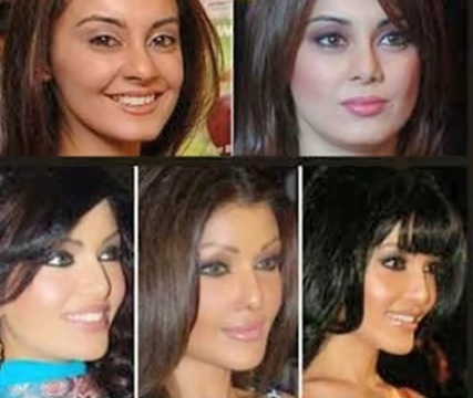 bollywood, celebrity, look, plastic surgery