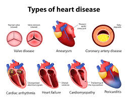 Everything you need to know about heart diseases and types of heart diseases
