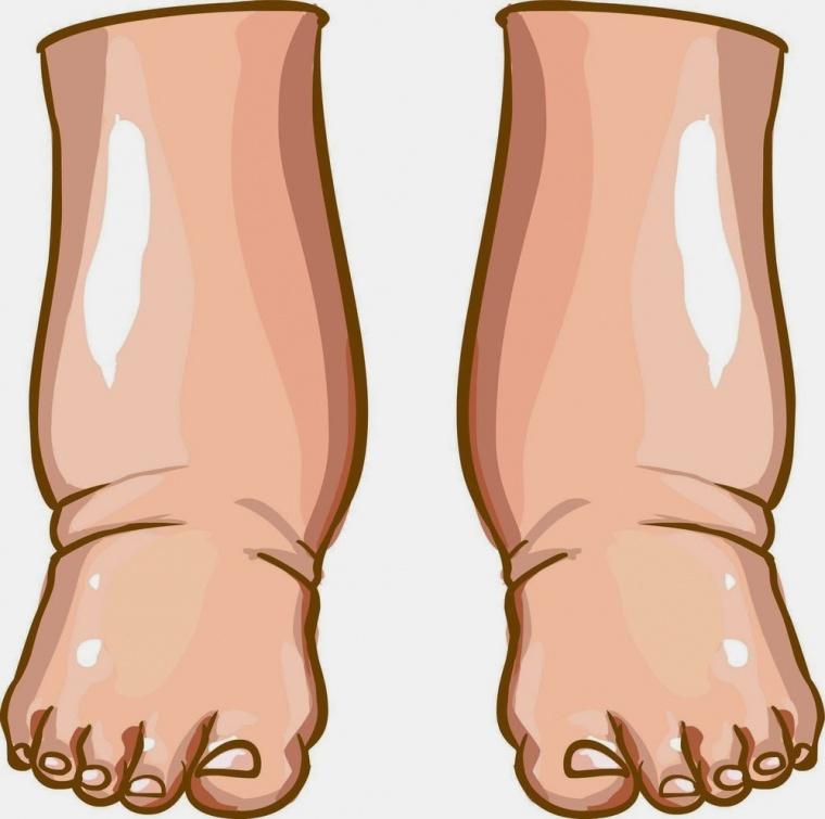 Image result for bengkak kaki akibat mengandung 2006