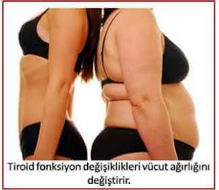 tiroid kilo
