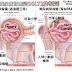 [臨床藥學] 報告用大圖 ACEI及ARB、SGLT2抑制劑腎臟保護機轉 (Renoprotection of ACEIs, ARBs, and SGLT2 Inhibitors)