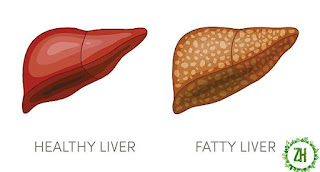 HOW TO KEEP A HEALTHY LIVER 2