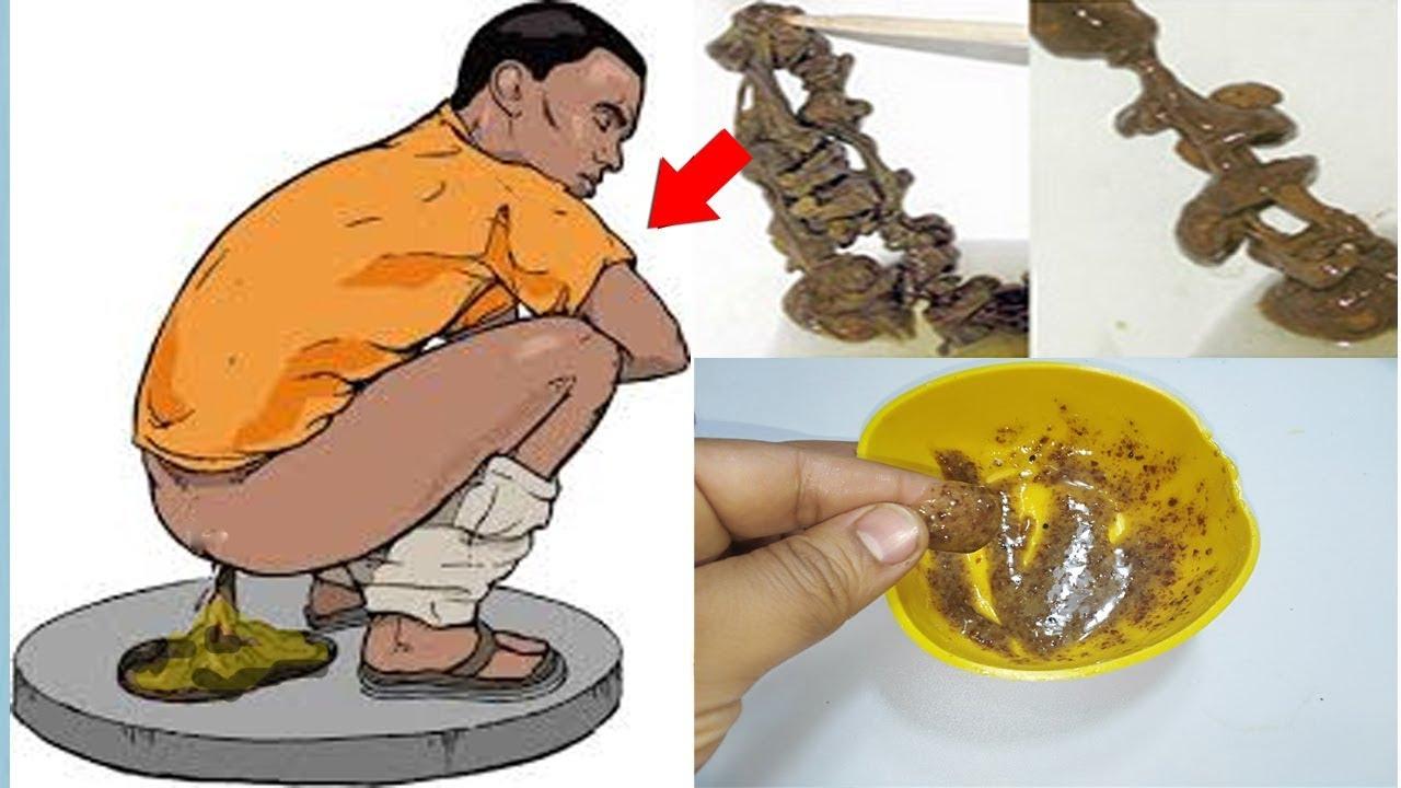 تنظيف القولون من البراز المتحجر والسموم و تنظيف البطن والمعدة