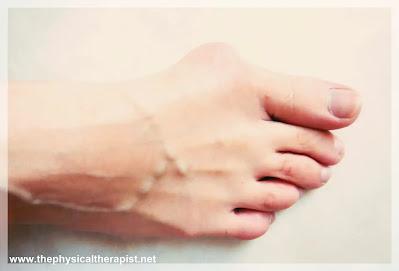 اعوجاج اصبع القدم الكبير : إليك العلاج الأكثر فاعلية