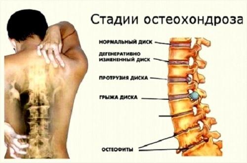 Остеохондроз: лечение в Одессе. Причины, симптомы, диагностика, лечение