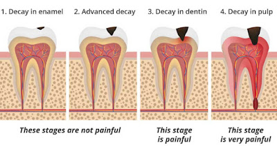 Stages Of Tooth Decay, Tooth cavity
