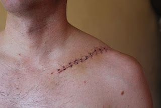 clavicle fracture - by www.physioscare.com