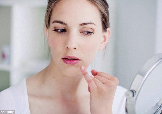 Herpes-en-la-Cara-Tratamiento-natural-facial