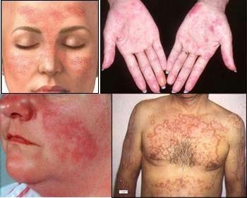 Cara Mengobati Penyakit Lupus Hanya 1 Minggu Sembuh