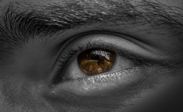 5 Cara Mengobati Mata Bengkak Dengan Pengobatan Rumahan