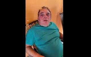 Candidato a prefeito é brutalmente agredido durante assalto na Paraíba