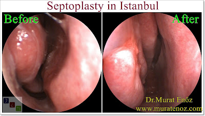 How Much Does a Septoplasty Surgery Cost? - How Much Does a Septoplasty Surgery Cost in Turkey? - Septoplasty Cost in istanbul - Septoplasty Surgery in İstanbul - What Is The Cost Of Septoplasty in Istanbul, Turkey - Septoplasty İstanbul - Deviated Septum Before and After Septoplasty in İstanbul