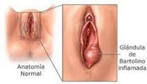 Obat Sipilis Gatal Di Penis