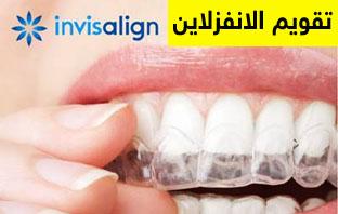 انواع تقويم الاسنان بالصور