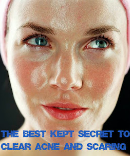 The Best Kept Secret to Clear Acne and Scarring ♥ ♥ acne acne remedies acne treatment acne scars acne cure + DAILY acne treatment news updates to keep you in the know #carbswitch carbswitch.com Please Repin ♥ -- Top ranked Acne Treatment Pinterest Pins compiled here w/ links to original sources to help you or a loved one --