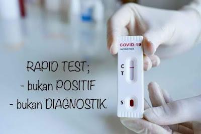 Reaktif Positif Belum Tentu Positiv Covid-19
