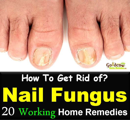 20 Simple Home Remedies To Get Rid Of Nail Fungus Fast - Golden Home Remedies