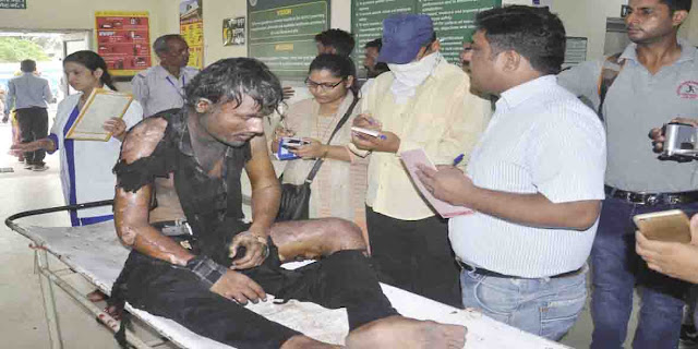 youth-injured-after-burn-ballabgarh-faridabad