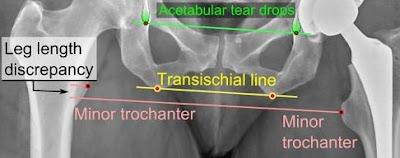 Pengertian Anisomelia (LLD) Serta Etiologi Dan Pemeriksaannya