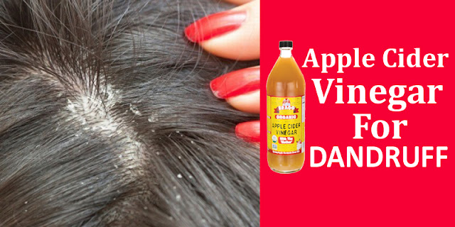 How To Get Rid Of Dandruff By Using Apple Cider Vinegar!