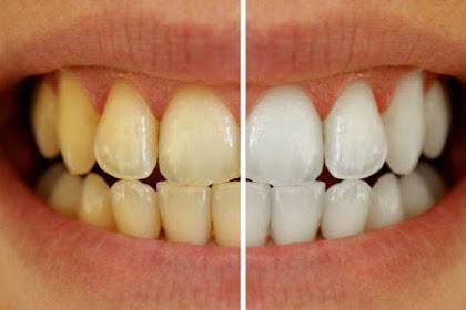 Cara Menghilangkan Plak Gigi Bahan Alami Tanpa Biaya Murah