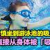 女童不慎坐到游泳池的吸入阀上,小肠直接从身体被「吸出来」