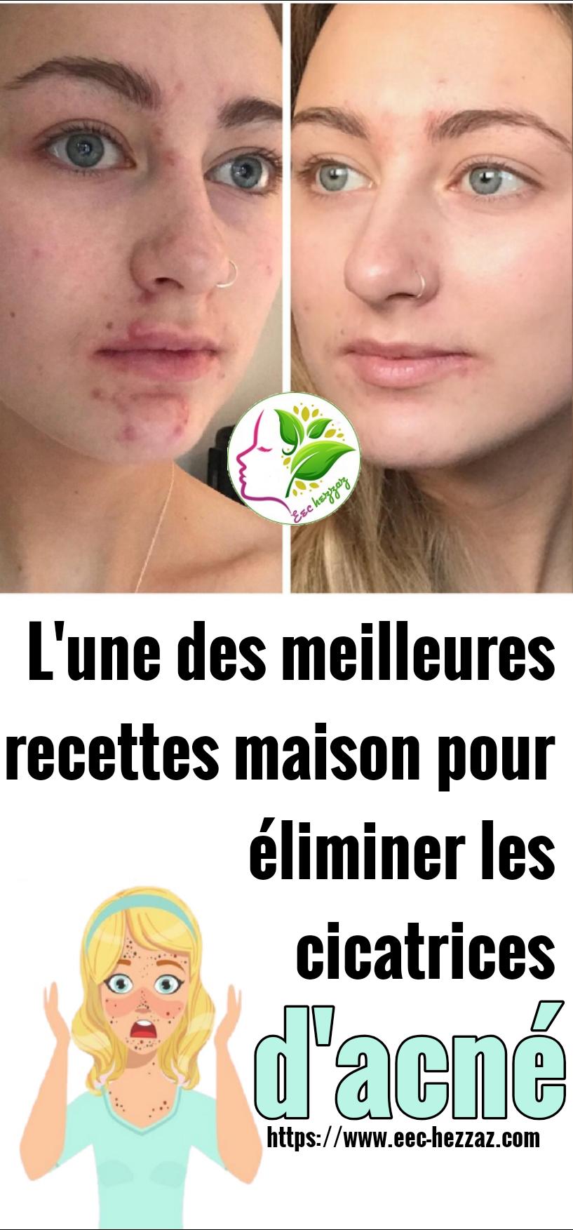 L'une des meilleures recettes maison pour éliminer les cicatrices d'acné
