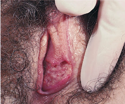 Genital ulcer due to Behçet syndrome in a 23-year-old woman born in Turkey