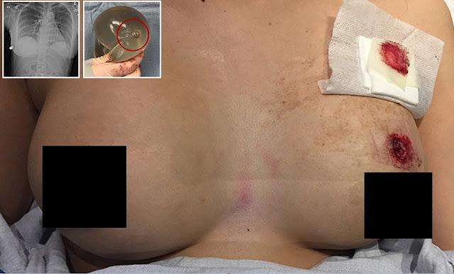 Il silicone nel seno falso di una donna ferma il proiettile che era diretto al cuore, salvandole la vita