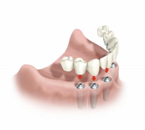 cuanto cuesta un implante dental en ecuador