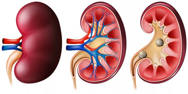 3 ways to maintain kidney health