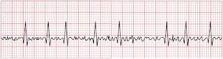 An ECG of atrial fibrillation.