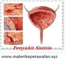 Askep Sistitis: Manifestasi Klinis, Test Diagnostik, Penatalaksanaan dan komplikasi