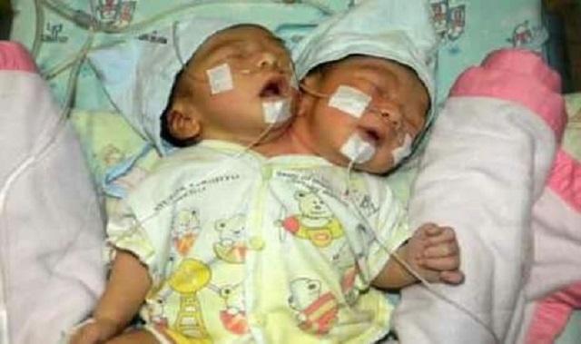 Bayi Perempuan Berkepala Dua Lahir Di Indonesia
