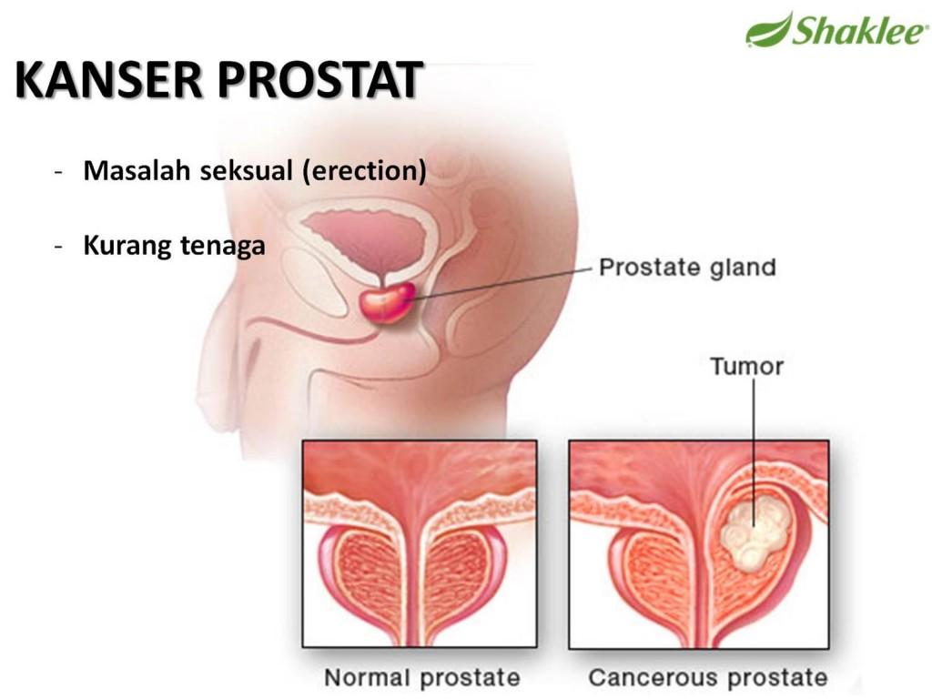 Fedjük le a prosztatitist Prostatitis a glomerulonephritisben