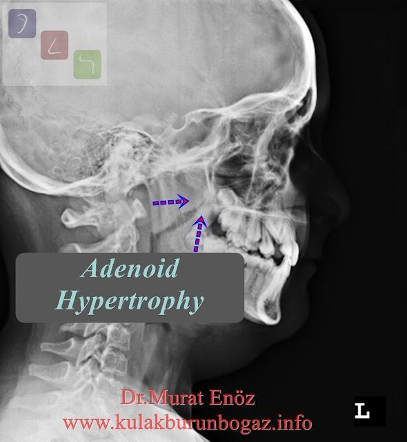 Adenoid Hypertrophy