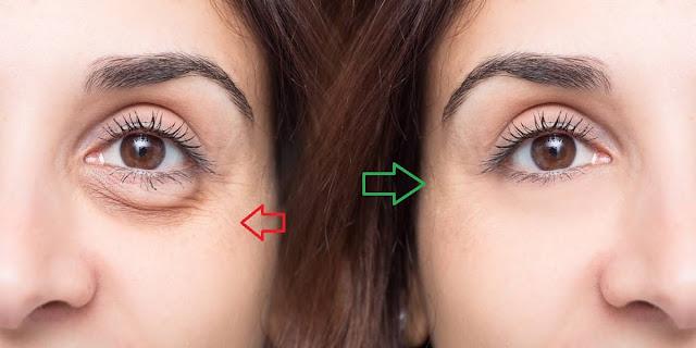 Mira cuales son las causas de las bolsas debajo de los ojos.