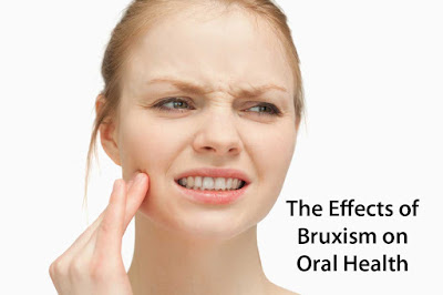 The Effects of Bruxism on Oral Health