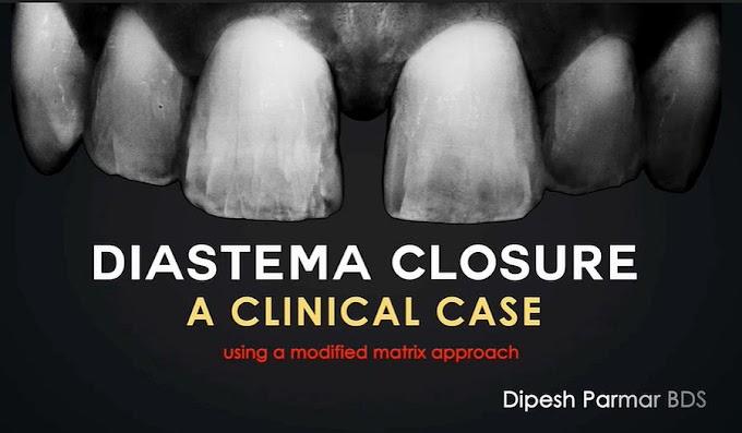 CLINICAL CASE: Diastema Closure Perfection - Using a modified matrix approach - Dr. Dipesh Parmar