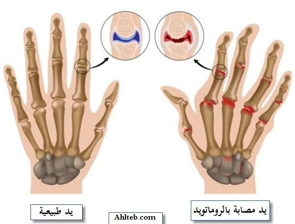 التهاب-المفاصل-الروماتويد-الروماتيزم