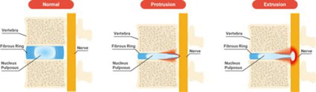 Nukleus pulposus
