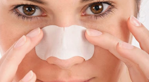 10 Home Remedies for Blackheads